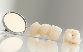 Restore your smile with a crown and dental bridge in Farmington.