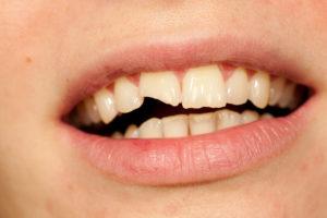 closeup of broken tooth in need of dental crown