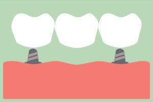 dental implants dentist