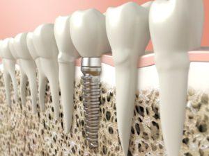 dental implant in jawbone