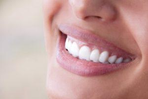 Smiling woman with beautiful teeth
